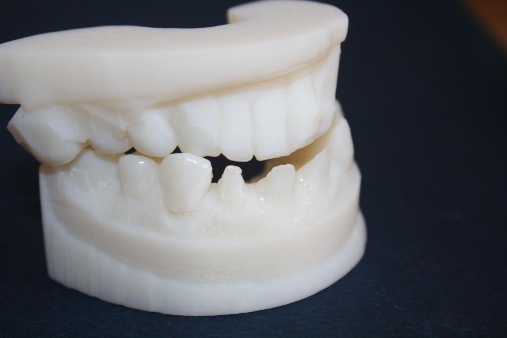 nyc_medical_dental_3d_printing_laser-cutz_brooklyn